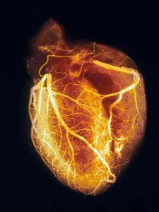 heart-angiogram_nat geo